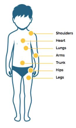 Duchenne Muscular Dystrophy Disease Progression | Duchenne com